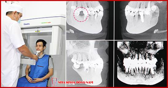 (cong nghe cay ghep implant voi phim ct 3d)