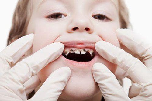 4 bệnh răng miệng thường gặp ở trẻ