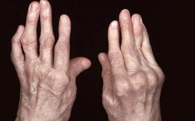Bệnh viêm khớp hơn 20 năm bỗng nhiên thuyên giảm nhờ duy trì thói quen này
