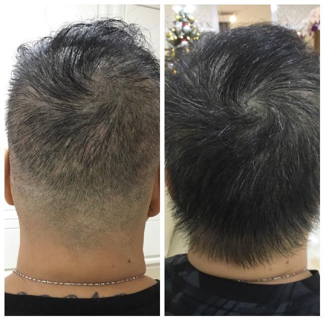 Phương pháp 'thần kỳ' giúp tóc mọc dày gấp đôi tại bệnh viện Quốc tế DNA