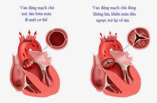 Hở van động mạch chủ tăng nguy cơ suy tim