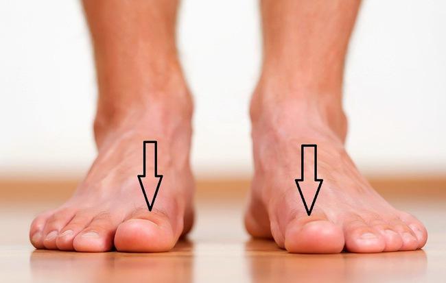 Xoa bấm ngón chân cái trị huyết áp cao