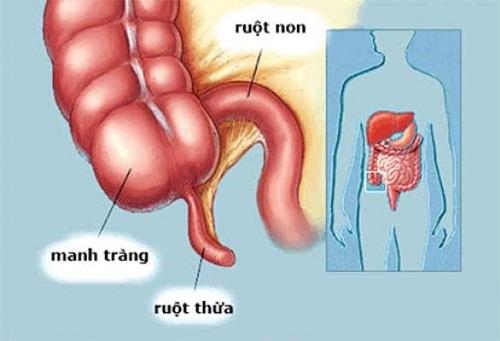 Dấu hiệu viêm ruột thừa?