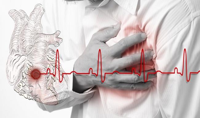 Câu hỏi 41: Phải làm gì khi bản thân hoặc người nhà bị cơn đau ngực trái đột ngột?