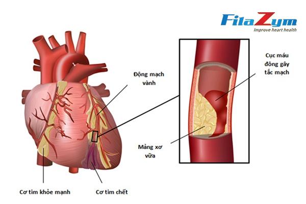 Câu hỏi 36: Có khi nào bị bệnh động mạch vành mà không đau ngực không?