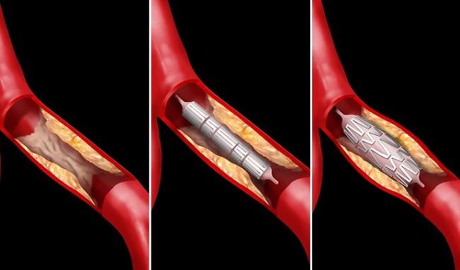 Câu hỏi 48: Xin cho biết đặt stent động mạch vành là gì? Làm như thế nào?