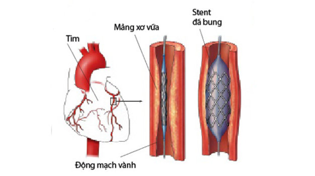 Câu hỏi 45: Tôi đã được đặt stent động mạch vành loại phủ thuốc? Xin cho hỏi stent này tồn tại được bao lâu? Có nguy cơ gì không?