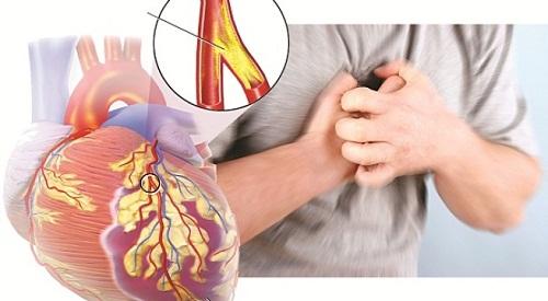 Câu hỏi 43: Tôi đã được chẩn đoán là đau thắt ngực ổn định? Bệnh này có chữa được không? Chữa như thế nào?