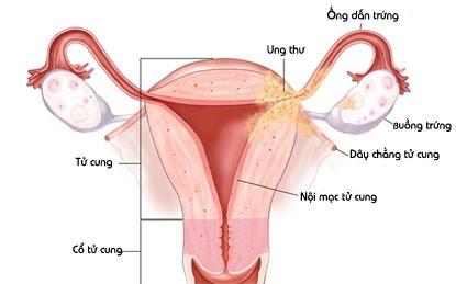 Ung thư cổ tử cung phát hiện sớm dễ chữa khỏi