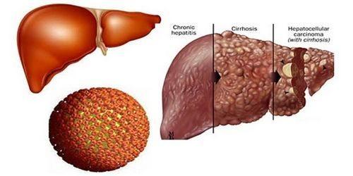 Xoa bóp + bấm huyệt tránh biến chứng viêm gan B